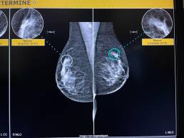 cas de la semaine 18 - mammoscreen